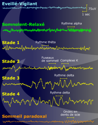 ondes cerebrales Problématique des ondes électromagnétiques